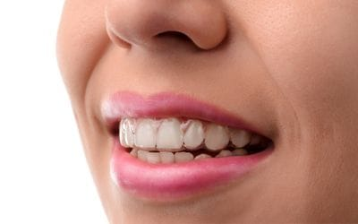 woman wearing clear aligners