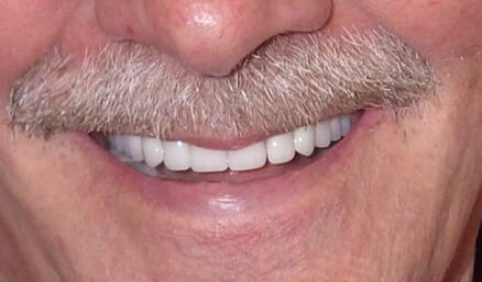Brilliant smile after whitening