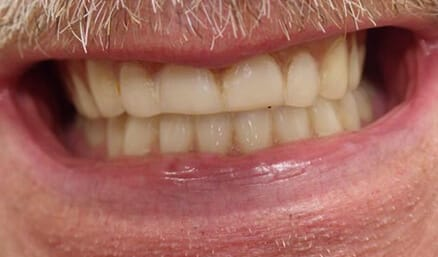 Discolored teeth before whitening
