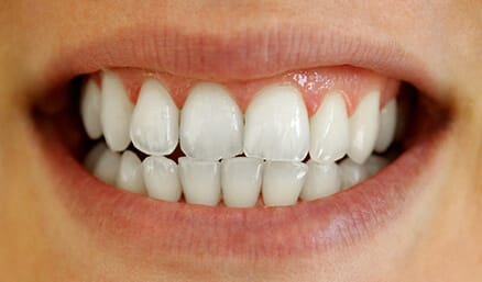 Bright white smile after whitening