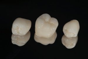 dental crowns in Washington